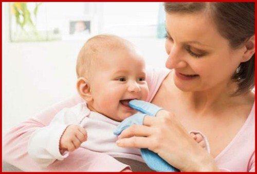 Cách chữa nanh sữa cực hiệu quả ở trẻ sơ sinh