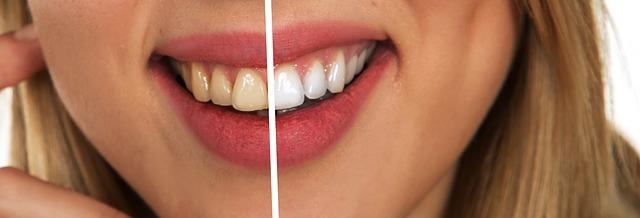 Cách đánh răng đúng cách